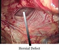 post inginal hernia rehabilitation